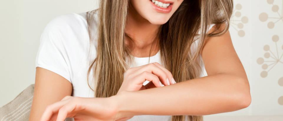 Koža žena koža svrbež grebanje dermatologija ruka bol shutterstock 47752060