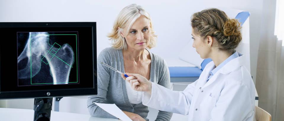 Osteoporoza shutterstock