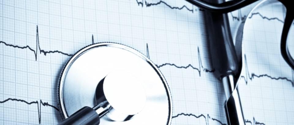 kardiogram-otkucaji-srce7