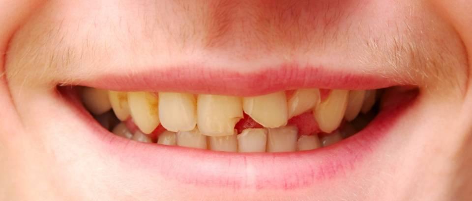 Zubi, pokvareni