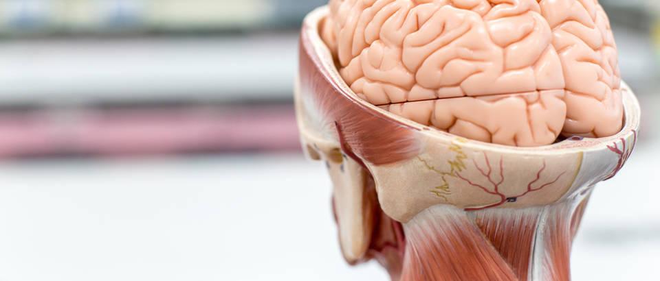 mozak, mozdani udar
