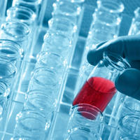 krv, hiv, laboratorij, epruvete