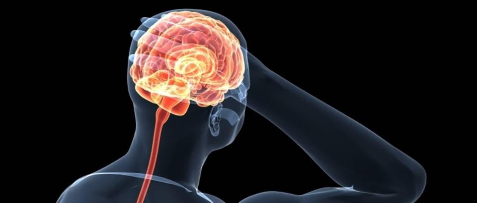 bol-glavobolja-migrena-mozak7