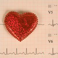 srce-rad-srca-srcani-udar-5