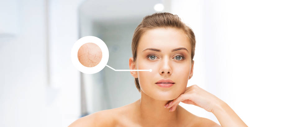 lice, suha koza, Shutterstock 152011343