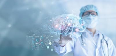 Zapamtite ovih 10 ranih znakova Alzheimerove bolesti – o njima bi uskoro mogao ovisiti ishod liječenja