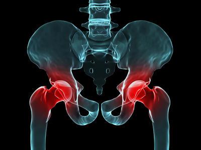 Ugradnja umjetnog zgloba kuka - Kako se pripremiti i koja su realna očekivanja nakon operacije?