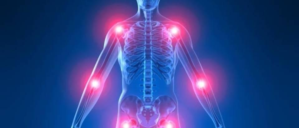 zglobovi bolni, reumatoidni artritis, upala