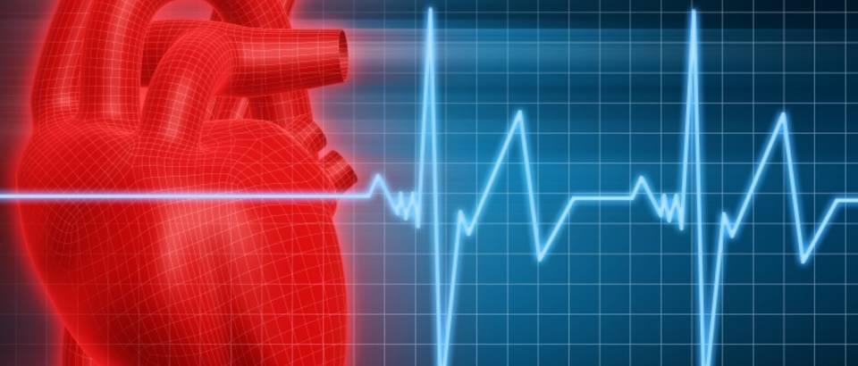Bildresultat för infarkt