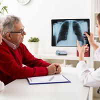 rak pluca, prevencija