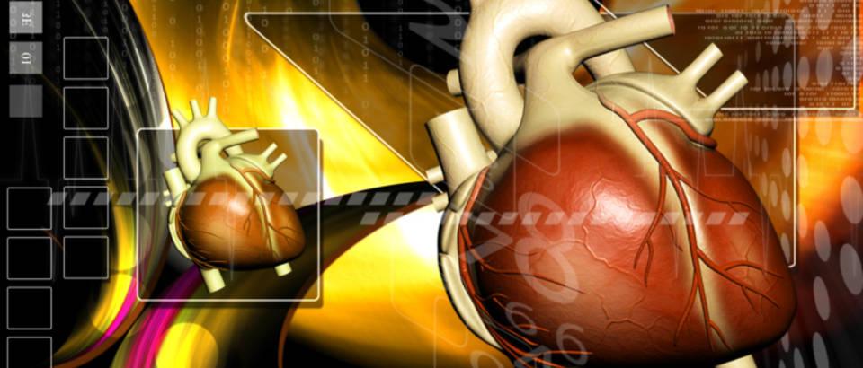 srce-srcani-udar-arterije