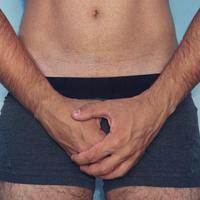 vazektomija, erekcija