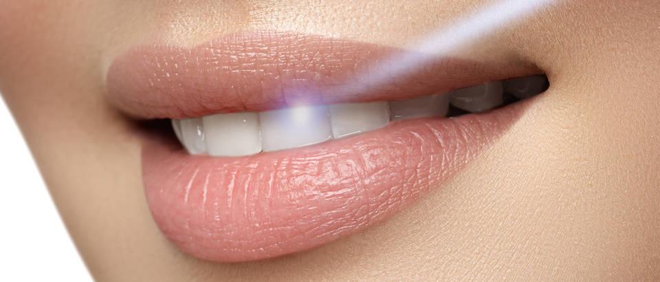 blistav osmijeh Shutterstock 357789518