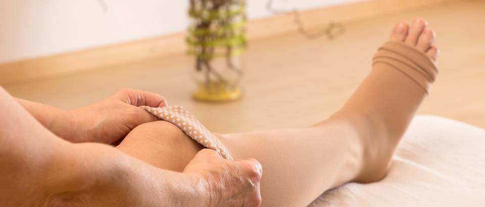Medicinske čarape limfedemshutterstock 177000416