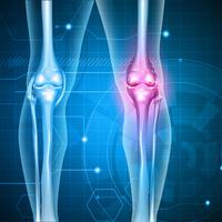 osteoartritis, Shutterstock 274143626